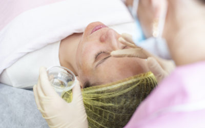 What to Expect From My Chemical Peel Treatment